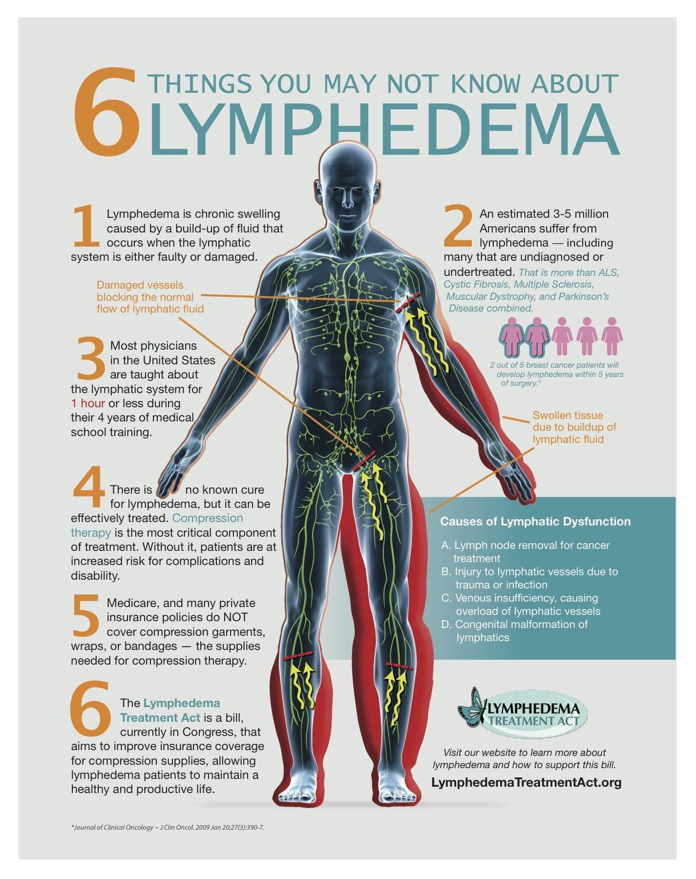 Lymphedema Treatment Act